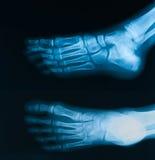 Radiografíe la imagen del pie, del AP y de la visión oblicua Foto de archivo libre de regalías
