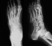 Radiografíe la imagen del pie quebrado, del AP y de la visión lateral Fotos de archivo