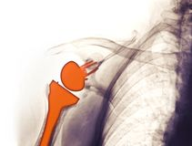 Radiografíe mostrar un reemplazo del hombro Foto de archivo