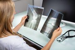 Radiograf?a del doctor Examining Knee imagen de archivo libre de regalías