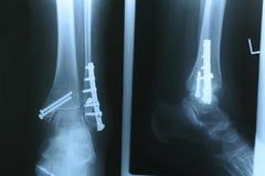 Radiografía 02 Foto de archivo libre de regalías