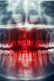 Radiografía, cráneo del horror Fotos de archivo libres de regalías