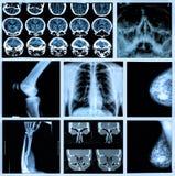 Radiografía de huesos humanos Foto de archivo libre de regalías