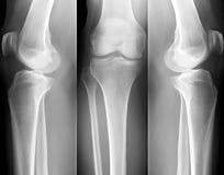 Radiografía de la rodilla Foto de archivo libre de regalías