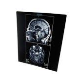 Radiografía Image-1 Imágenes de archivo libres de regalías