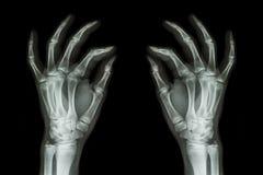 Radiografe as mãos humanas normais (parte dianteira) no fundo preto Fotos de Stock Royalty Free