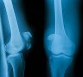 Radiografe a imagem da articulação do joelho, do AP e da vista lateral Imagem de Stock Royalty Free