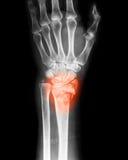 Radiografe a imagem da junção de pulso, opinião do PA Foto de Stock