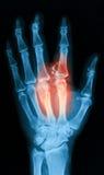 Radiografe a imagem de mão quebrada, opinião do AP Imagens de Stock