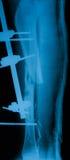 Radiografe a imagem de pé quebrado, vista lateral Fotografia de Stock