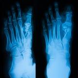 Radiografe a imagem do pé, do AP e da opinião do obligue Foto de Stock