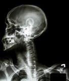 Radiografe o crânio asiático (pessoa tailandês), espinha cervical, amba ombro imagem de stock royalty free