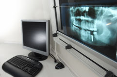 Radiografia 1 Fotografia Stock