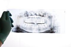 Radiografia Imagem de Stock