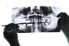 Radiografia Imagens de Stock