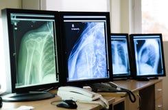 Radiografia Fotografia Stock Libera da Diritti