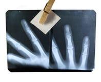 Radiografia Fotografie Stock