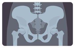 Radiografia anterior do osso humano da pelve ou do quadril com parte lombar Radiografe a imagem ou a imagem do sistema esqueletal ilustração royalty free