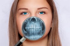 Radiografia da cara, odontologia, mulher fotos de stock royalty free
