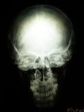 Radiografia del cranio Fotografie Stock