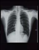 Radiografia del torace fotografie stock libere da diritti
