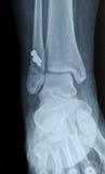 Radiografia dell'osso umano del perone di fessura Fotografia Stock Libera da Diritti