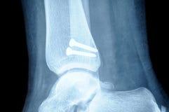 Radiografia dell'osso umano del perone di fessura Fotografie Stock Libere da Diritti