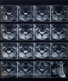 Radiografia della spina dorsale dei raggi x Fotografia Stock Libera da Diritti