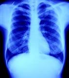 A radiografia normal do raio X da caixa, pulmão e ouve-se Fotografia de Stock