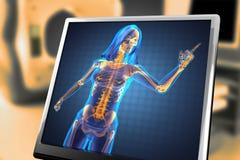 Radiografia sveglia della donna Immagini Stock Libere da Diritti