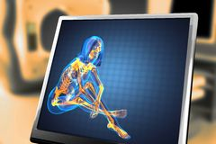 Radiografia sveglia della donna Fotografie Stock