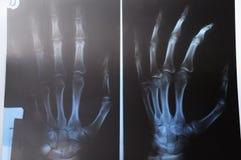 Radiografie van hand Stock Foto