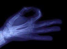 Radiografie van hand royalty-vrije stock afbeeldingen