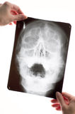 Radiogramma Fotografie Stock