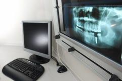 Radiograph 1. A radiograph at a medical practice Stock Photo
