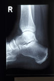 Radiograph, ankle Stock Images