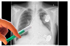 Radiograph, chest, hands with syringe Stock Images