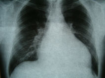 Radiograph, chest, heart failure Royalty Free Stock Image