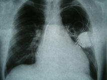 Radiograph, chest, heart pacemaker Royalty Free Stock Photography
