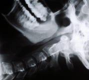 Radiograph da garganta humana Fotos de Stock