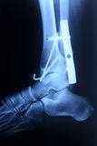 Radiograph of human fracture ankle Royalty Free Stock Photos