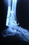 Radiograph of human fracture ankle. Authentic x-ray picture of human fracture ankle with metal plate and screws Stock Photography