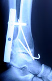 Radiograph of human fracture ankle Stock Images