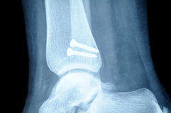 Radiograph of human fracture fibula bone Royalty Free Stock Photos