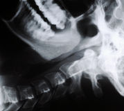 Radiograph of human neck Stock Photos