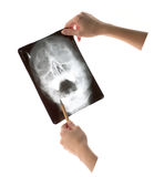 Radiographie Images stock