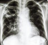 Radiographie de coffre Photographie stock libre de droits