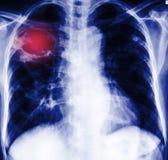 Radiographie de coffre Image libre de droits
