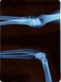 Radiographie de coude Photographie stock libre de droits