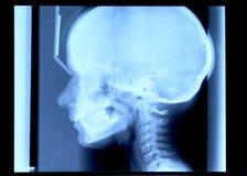 Radiographie de crâne Photo libre de droits
